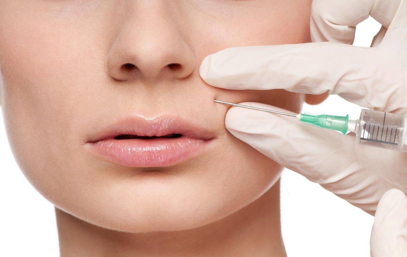 Филлеры и ботулотоксин помогают избавиться от морщин марионеток